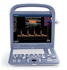 Sonoscape S2 Portable Ultrasound