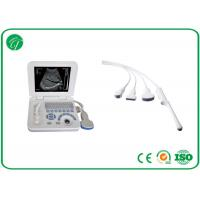 Smart Digital B Ultrasound Scanner CRT Stable Screen All Kinds Of Measurements