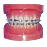 China Orthodontic Human Teeth Model for Hospitals And Dental Hospital Training on sale