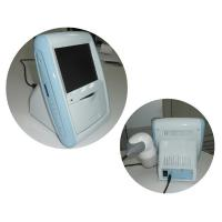 CScan-1 Portable ultrasound bladder scanner With one A ...