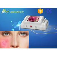 laser removal machine for sale