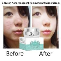 China B-Queen OEM/ODM Skin Care acne treatment removing anti acne cream wholesale
