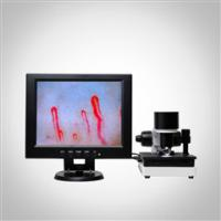 Wholesale 2017 New Arrival SSCH Color LCD Display Clincial Blood Analysis Microcirculation Microscope from china suppliers