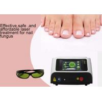China Onychomycosis Laser Toenail Fungus Treatment Machine , Fungal Nail Infection Laser Device wholesale