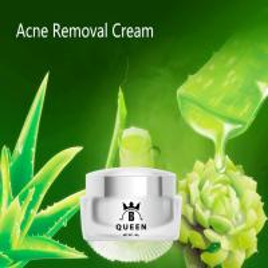 China Aloe Vera Moisturizing Skin Anti Aging Dark Spots Whitening Acne Removing Cream For Woman wholesale