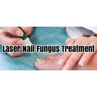 China Safe Laser Therapy Machine For Fungal Nail Infection , Toe Nail Fungus Laser Equipment wholesale