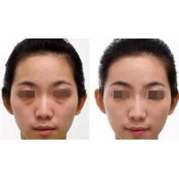 Quality Factory Supply Good Price High Quality Hyaluronic Acid Dermal Filler for sale