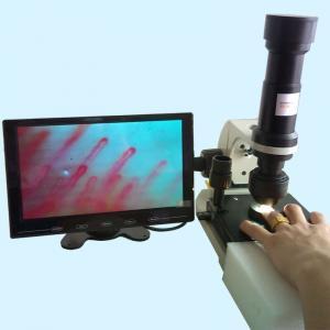 China Hospital Nailfold Capillary Microscopy / Microcirculation Microscope Multi Function for Medical wholesale