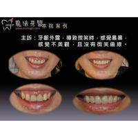 China Full Mouth Dental Implants wholesale